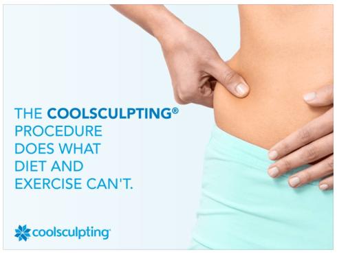 Coolsculpting-1